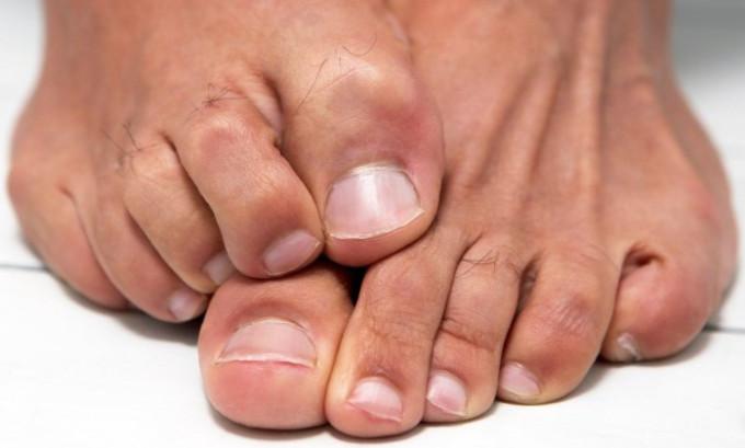 Ноготь, который уже врос в палец руки или ноги, приобретая форму, привычную для этого рода, в таком случае каждый член семьи имеет патологию, с которой придётся бороться