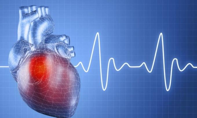 Учащение пульса может быть признаком гипертиреоза