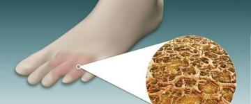Лечение грибка стопы народными средствами (запущенная форма)