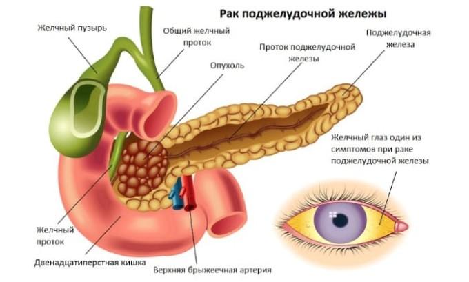 Первые опухоли развиваются из особых клеток, они производят выделение большого количества гормонов. Это влияет на весь организм