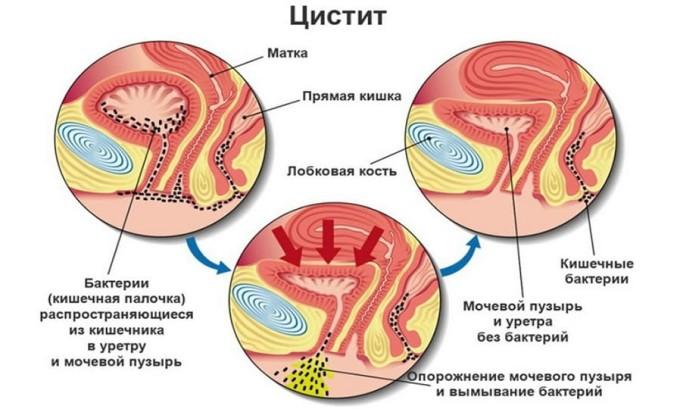 Цистит возникает вследствие попадания болезнетворных микроорганизмов в мочевой пузырь
