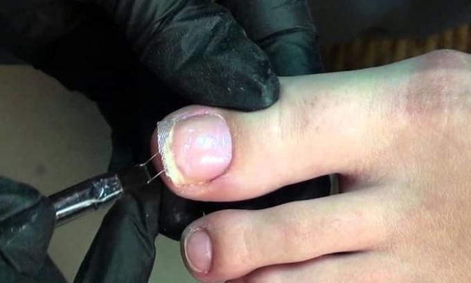 Коррекция при помощи акрилового геля выполняется для «поднятия» краёв, выравнивания формы, защиты ногтевой пластины