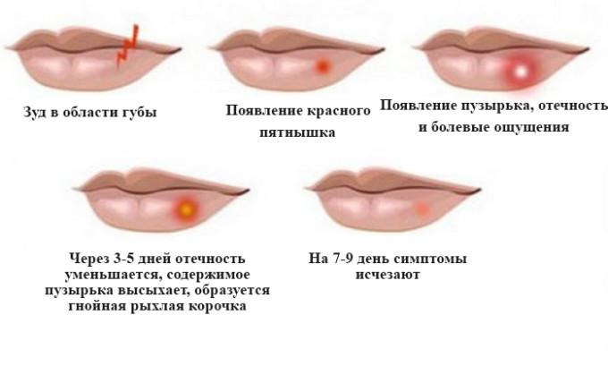 Острая стадия герпетической болезни протекает в несколько этапов: появление зуда, отечность, эрозия, образование струпьев