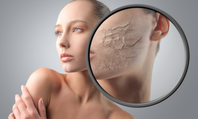 Одно из внешних проявлений тиреотоксикоза - сухость кожи