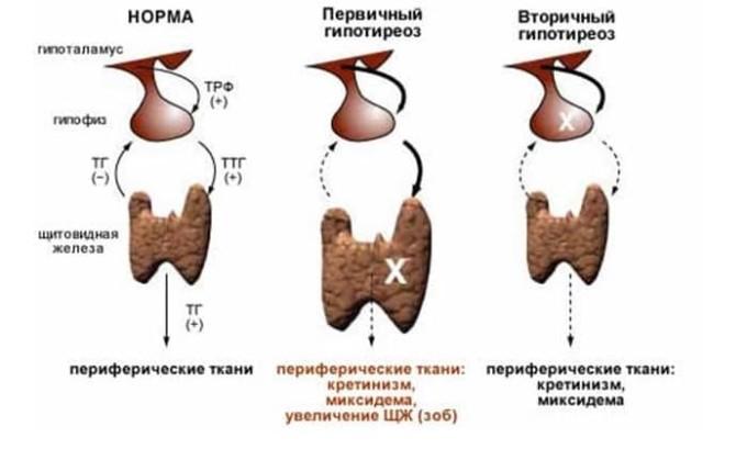 Виды гипотериоза