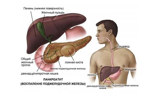 Псеводокисты в своем образовании проходят 4 стадии. Скорость зависит от формирования капсулы, обычно в первые полгода проходит стадия формирования, а далее - уже развитие