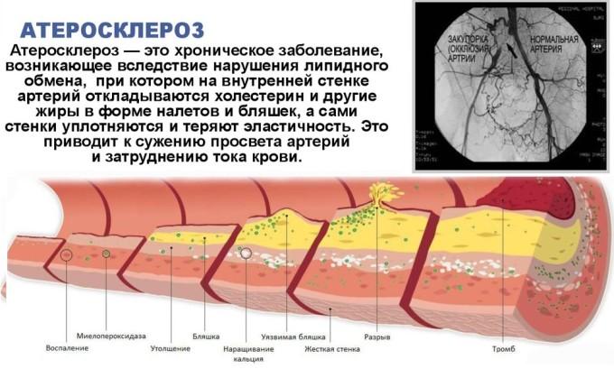 Запрещается носить компрессионное белье при атеросклерозе