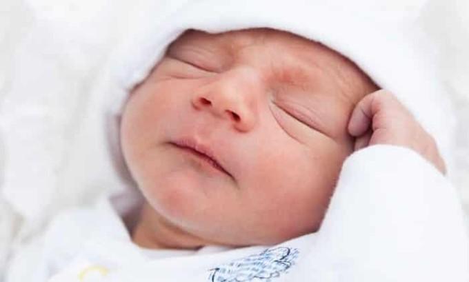 Ярко выраженные отеки лица у ребенка могут указывать на развитие гипотиреоза