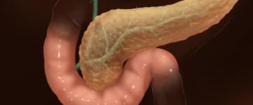 Симптомы и признаки обострения панкреатита