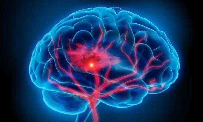 Однин из симптомов гипопаратиреоза является синдром поражения центральной нервной системы