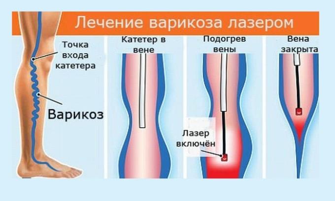 Альтернативой операции является лечение лазером