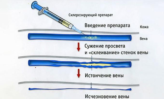В области паха делается прокол бедренной артерии, вводится катетер, который должен пройти по венам и добраться до пораженного участка. Затем через него в пораженную зону вводится склерозирующее вещество, перекрывающее поток крови в сосуд