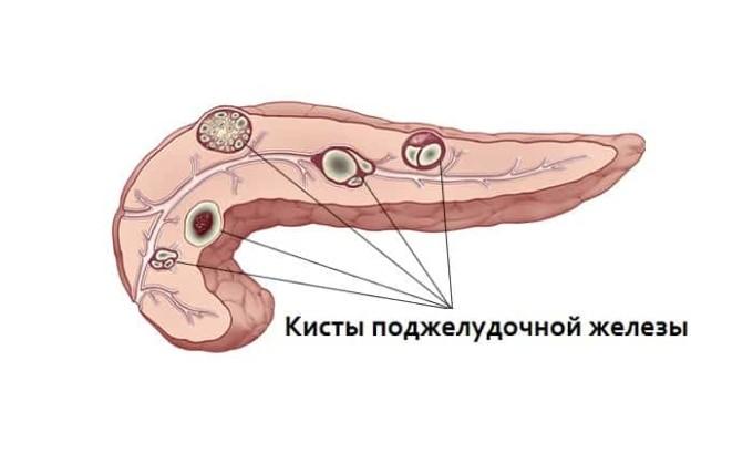 Если в поджелудочной железе обнаружены кисты, то необходима операци