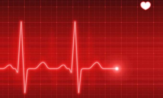 Один из симптомов фолликулярной аденомы щитовидной железы - повышенное сердцебиение