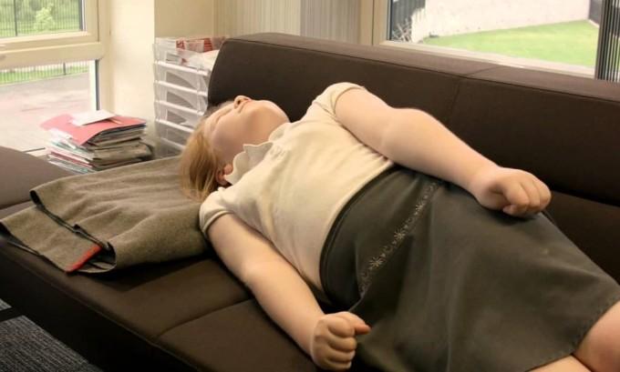 Судорожный синдром - симптом гипопаратиреоза