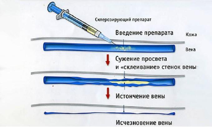 Далеко не все методы, которые можно применить при лечении данного заболевания, применимы к беременной женщине, в том числе и склеротерапия