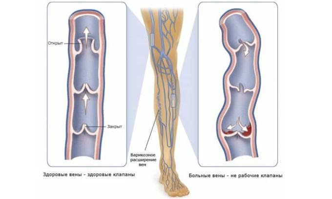 Плоскостопие может стать причиной варикозного расширения вен