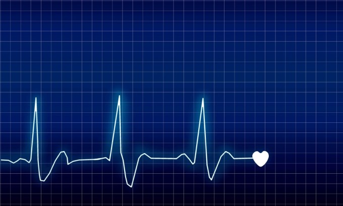 Нарушение ритма сердца характерно при тиреотоксикозе