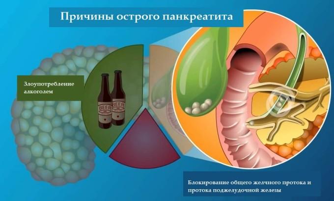В подавляющем большинстве случаев в развитии хронического панкреатита виноват алкоголь.