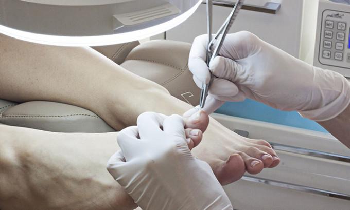 Если болезнь быстро прогрессирует, то врач может назначить один из хирургических методов вмешательства