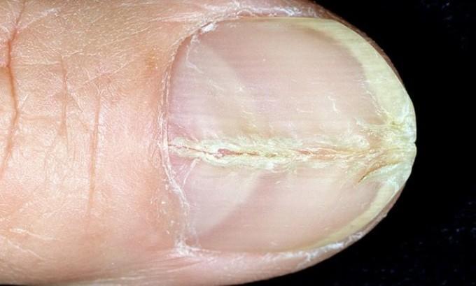 Если на ногтевой пластине появились трещины, следует заняться ее размягчением