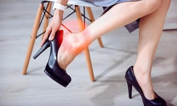 Даже на начальной стадии заболевания стоит полностью отказаться от высоких каблуков