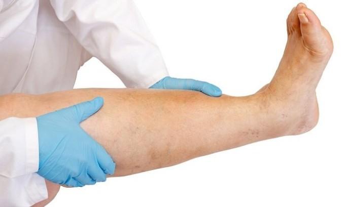Хирургическое вмешательство необходимо в том случае, если в результате варикоза у пациента появляется отечность ног