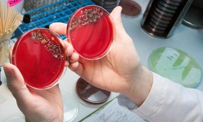Для диагностики болезни сдают бактериологический посев мазка из уретры