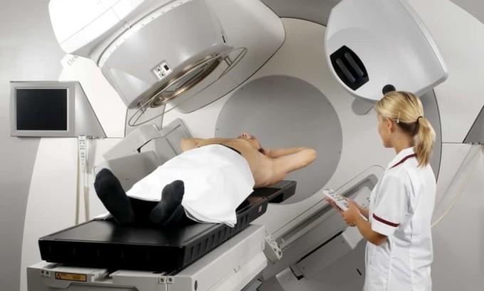 Процедура облучения перед пересадкой костного мозга может спровоцировать развитие папиллярного рака щитовидной железы