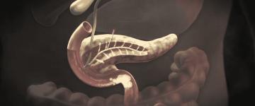 Симптомы и лечение рака поджелудочной железы