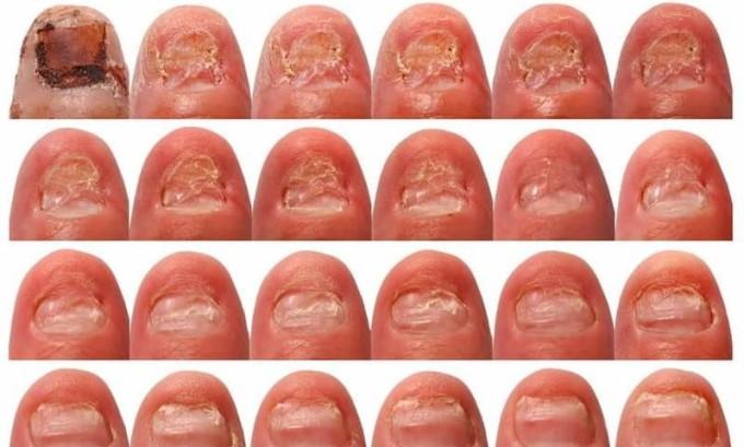 При заражении ногтевая пластина разрушается, начинает крошиться или врезается в кожу пальца