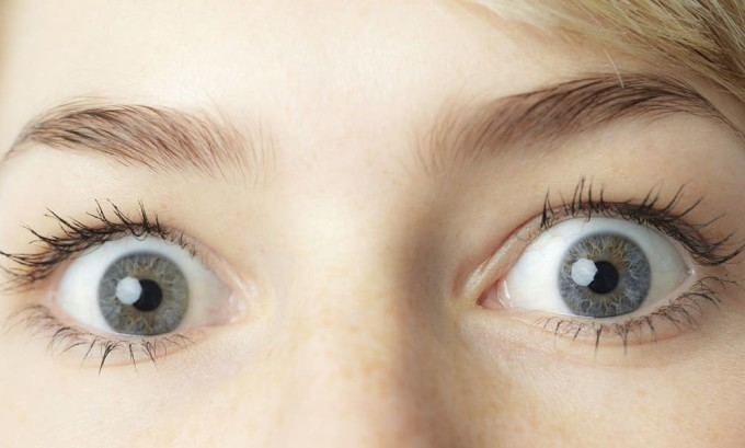 Тиреотоксикоз может проявиться в виде экзофтальма - выпячивания глаз из черепной коробки