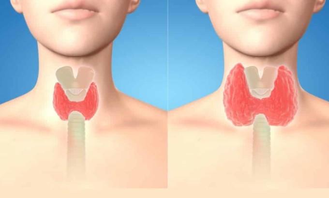 Эндемический зоб: нарушение функций железы в результате дефицита поступающего йода