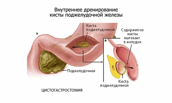 Процесс дренирования кисты поджелудочной железы, который назначается в этом случае, выполняется при помощи тонкой трубки, вводимой в полость