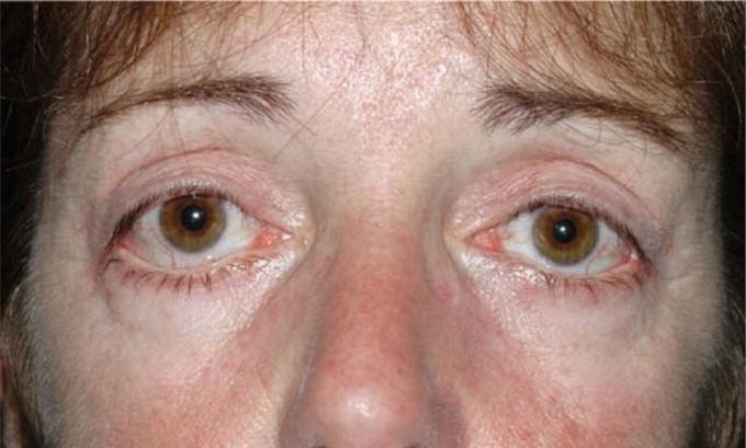 Пучеглазие – это патология органов зрения,что характерно при заболеваниях щитовидной железы