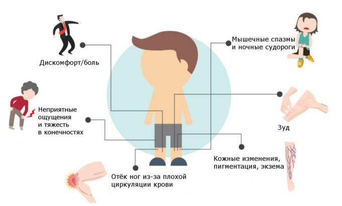 Основные симптомы варикоза