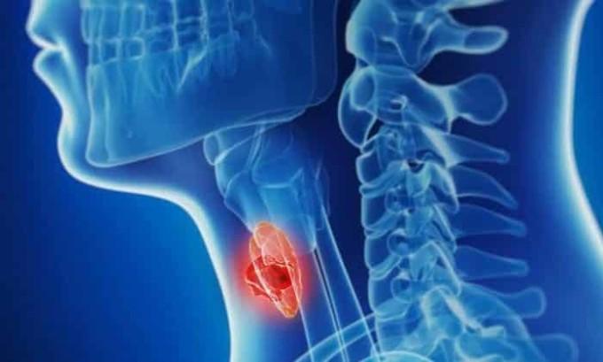 Опухолевые заболевания провоцируют развитие гипотиреоза