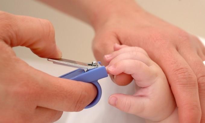 При несоблюдение правил гигиены младенца, подстригания ногтей может образоваться вросший ноготь