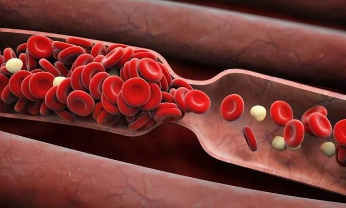 Панкреонекроз развивается в связи с возникновением нарушений в циркуляции крови и ее свертываемости