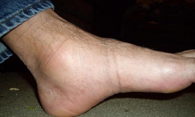 Общие проявления недуга связаны с отеками в ногах