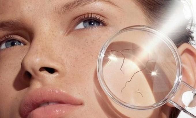 При базедовой болезни кожа и глаза становится очень сухими