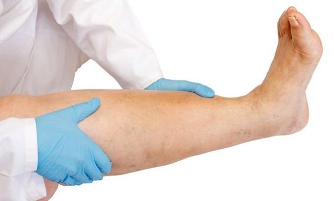 Довольно часто болезнь появляется на фоне варикоза нижних конечностей