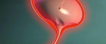 Симптомы хронического цистита