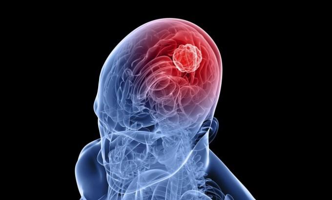 При запущенном виде герпеса вирус может перерасти в менингит