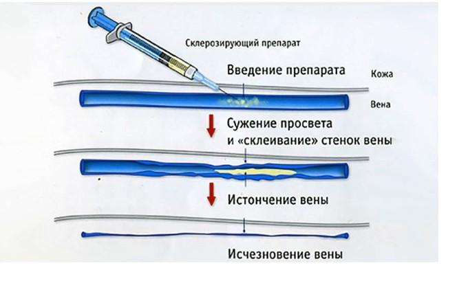 Склеротерапия - это методика, при которой в пораженные вены вводят специфический препарат, позволяющий регенерировать стенки сосудов