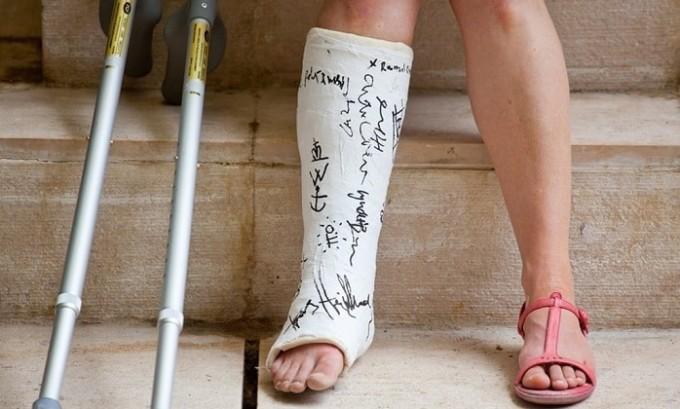 Перелом - это одна из причин среди мужчин, последствия после которой выражены деформацией формы подошвы