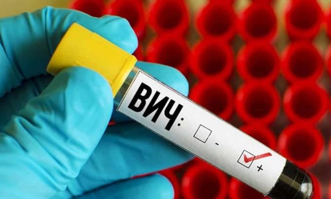 К факторам риска развития герпеса относиться ВИЧ-инфекция