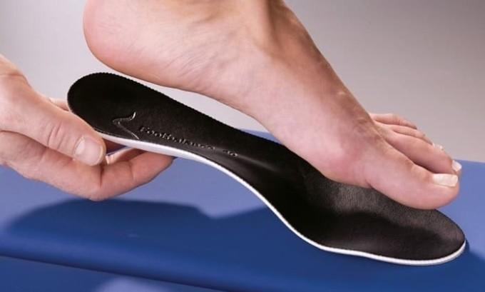 Можно использовать ортопедические принадлежности для моделирования правильной формы стопы
