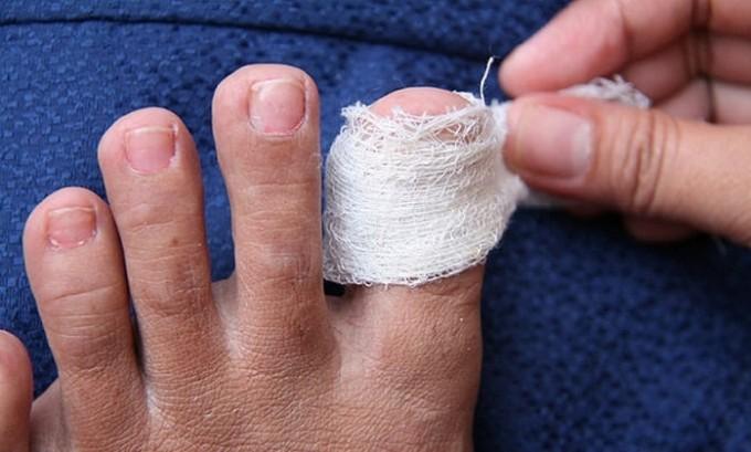 Если поражено всего один или два пальца грибковой инфекцией, нет необходимости отказываться от лечения перекисью водорода. В этом случае можно смело накладывать примочки с перекисью водорода