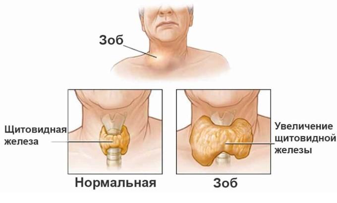 Наличие зоба щитовидной железы является основной причиной развития рака